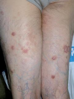 Nizoral el champú de la psoriasis