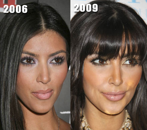 nicki minaj before and after pictures of plastic surgery. Kim Kardashian Plastic Surgery