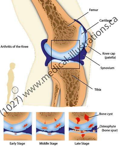 rheumatoid arthritis thesis 2013