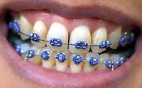 Lihat di Wikipedia tentang braces alias behel