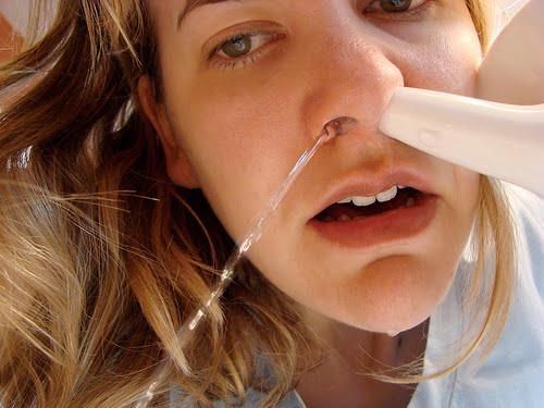 sinusitis care plan