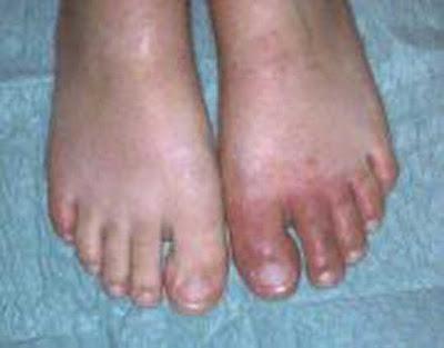 Les engelures dans Parapharmacie: soins du corps engelure+2