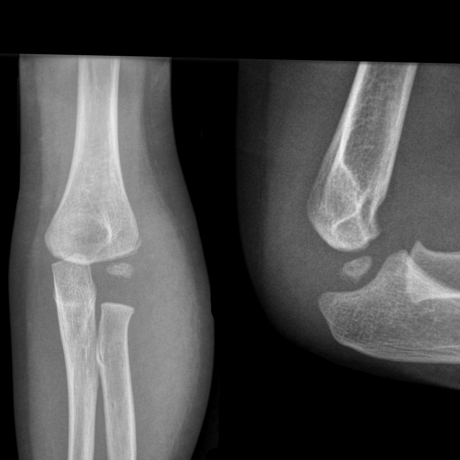 lateral condyle fracture - photo #8