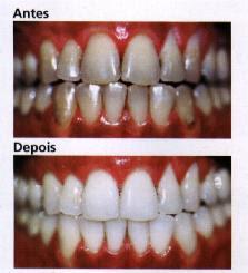 Clinica Odontomed Clareamento Dentario Supervisionado Por Dentistas