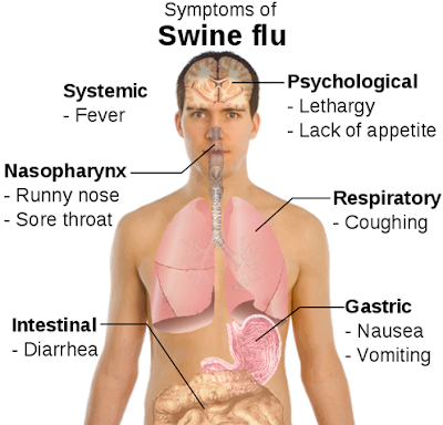 Swine Flu Symptoms Checker