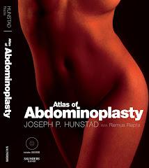 Atlas of Abdominoplasty