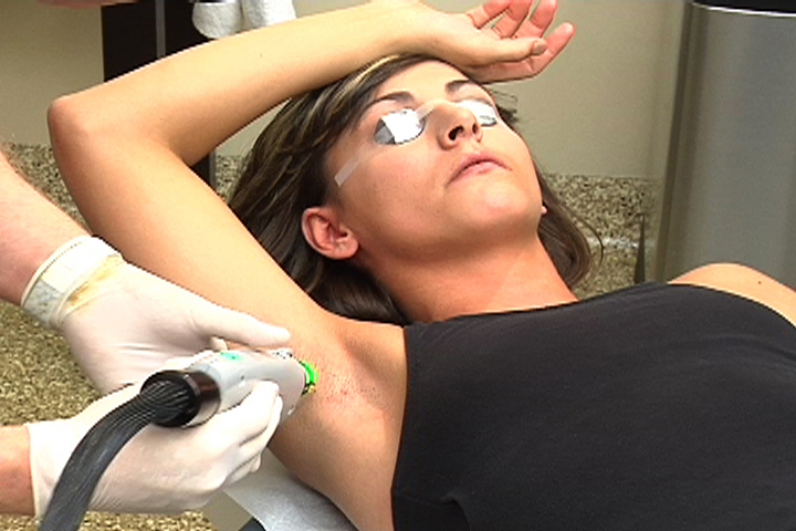 Laser Hair Removal: Lifestyle and home remedies