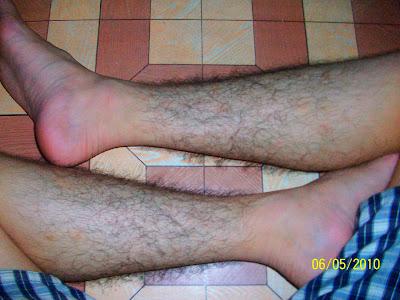 unwanted leg hairs