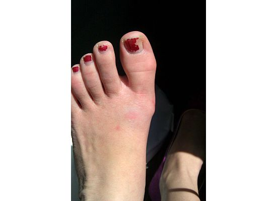 Disregard toes in in need of pedicure.-3.bp.blogspot.com