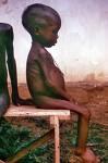 Los Niños y la Crisis alimentaria