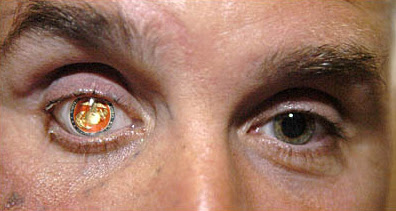 Nicholas Popaditch's prosthetic eye