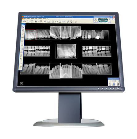 implementation of tomosynthesis in dental x