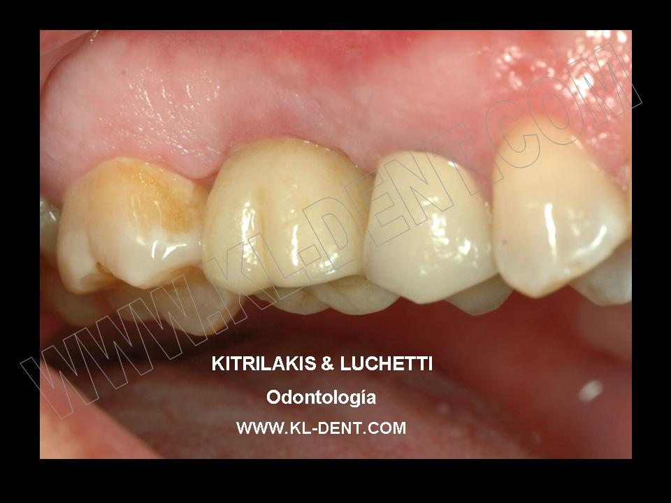 Kitrilakis Amp Luchetti Dentistry Dental Implant In Upper Molar Case 2