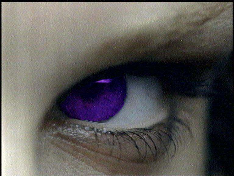 un ojo morado: