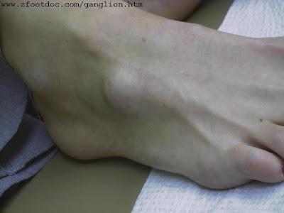 மணிக்கட்டில் கட்டி Ganglion+Foot