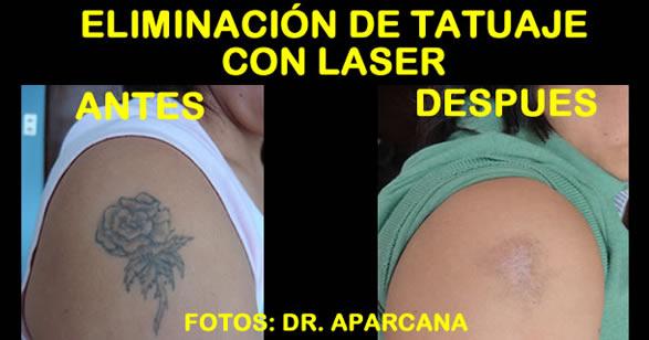 Eliminación de Tatuaje con Laser