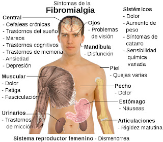 Sntomas de la fibromialgia