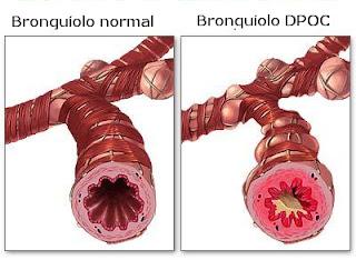 Bronquite - DPOC