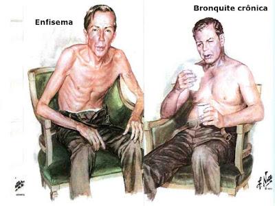 Enfisema x bronquite
