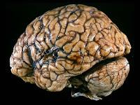 AVC - Vascularização do cérebro