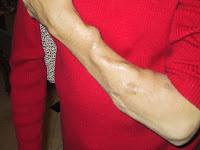 Fístula arteriovenosa para Hemodiálise