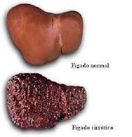Câncer de mama (leia: CÂNCER DE MAMA - Sintomas e diagnóstico) - Câncer de estômago - Câncer do cól Cirrhosis