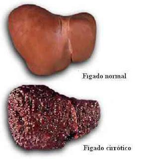 Fígado com cirrose