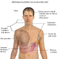 Sintomas HIV - AIDS