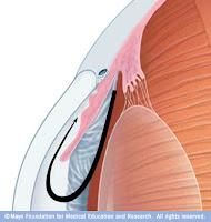 Glaucoma de ângulo fechado
