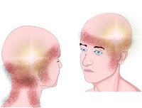 Dor de cabeça - cefaléia tensional