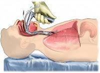 UTI - Intubação