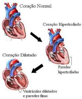 Coração hipertrofiado e coração dilatado