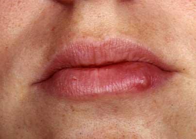 herpes simplex serology test