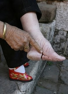 Sejak kecil, gadis-gadis di cina sudah melakukan pemotongan kaki ...
