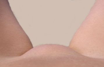Vulva Picture156