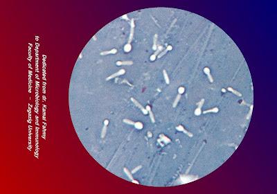 اطلس الميكروبيولوجي -1- C.tetani_Negative+staining2
