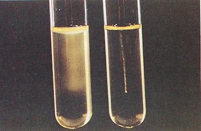 اطلس الميكروبيولوجي -1- Motility+Test