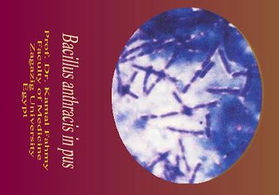 اطلس الميكروبيولوجي -1- Bacillus+anthracis+in+pus