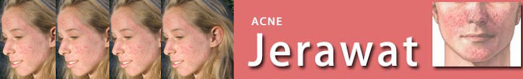 Acne | acne vulgaris | acne lotion  | acne care  | acne solution | acne cream | anti acne