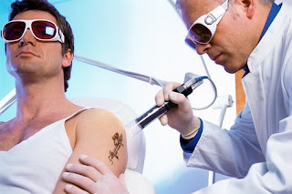 Tattoo Removal Methods Differ From Laser Tattoo Removal: Tattoos and Tattoo Pictures22222