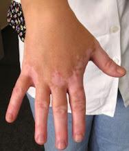 maschas de las manos