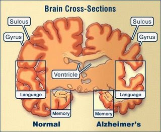 the brain and how alzehimers affects its normal function Alzheimer's disease affects the body by impairing the parts of the brain that  out  as a problem with memory and thought, it eventually affects the function of the.