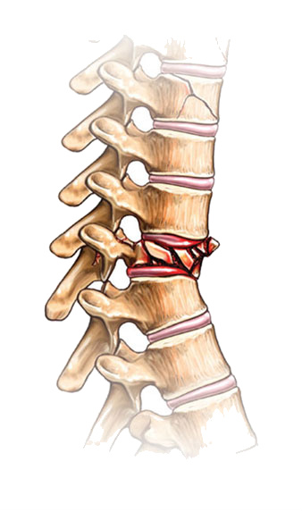 compression osteosynthesis first used Osteosynthesis plates are clinically used to fixate and position a fractured bone they should have the ability to withstand cyclic loads produced by muscle contractions and total body weight.