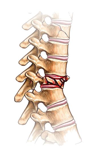compression fracture a compression fracture is when the bone is-3.bp.blogspot.com