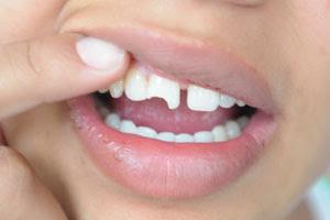 O que fazer com um dente quebrado