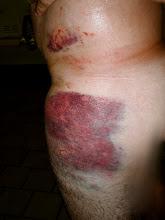 My Bruise