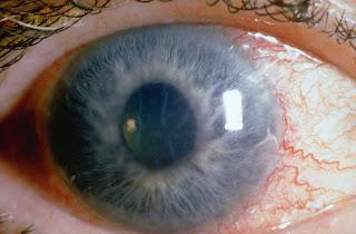 Glaukoma jejas penglihatan