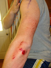 Arm Road Rash - post-AtomicMan