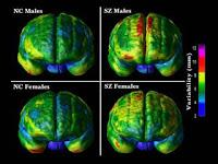 Frontal komposit variabilitas biasa dan otak skizofrenia berdasarkan gender