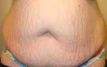 Badan gemuk selepas bersalin